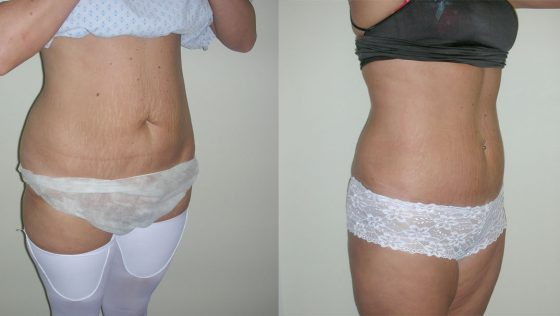 Tummytuck Can Remove Stubborn Loose Skin On Your Waistline
